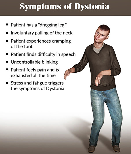 symptoms dystonia