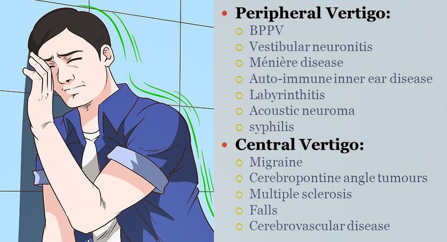 Types of vertigo
