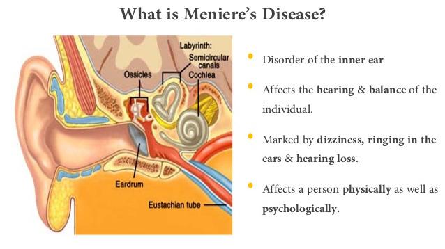 What is Meniere's disease